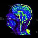 Musikvideo aus dem Kernspintomographen